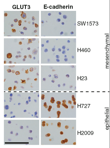 GLUT3 is strongly expressed in mesenchymal lung tumor cells.   The indicated cells were stained to analyze the expression of GLUT3 or E-cadherin by immunocytochemistry. Scale bar, 100 μm.  The dashed line indicates the separation between the mesenchymal and the epithelial groups of cells.  Meylan et al 2014.