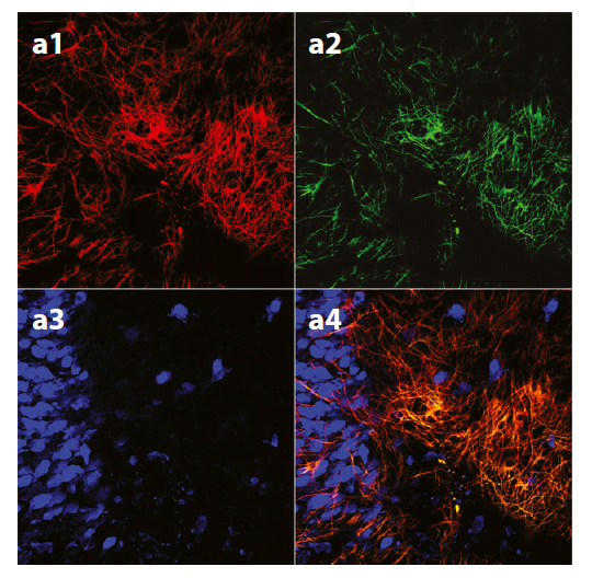 The identity of the infected cells expressing the tetanus neurotoxin (TeNT) Δ1-GFP was established by immunofluorescence detection of astrocytic marker GFAP (a1) or the neuronal marker NeuN (a3).  (a2) green fluorescence emitted by (TeNT) Δ1-GFP.  In a4 the merged images are shown.  Heinemann et al 2014.