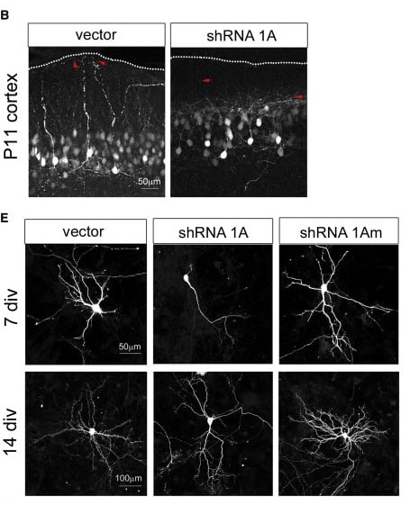(B) A simplified dendritic arbor was observed in cortical neurons at P11 following in utero electroporation of shRNA constructs at E15.5. Dendrites also appeared to be misoriented, terminating farther from the pial surface (red arrows). Scale bar, 50 μm.  (E) Hippocampal neurons at 7 and 14 DIV following Cc2d1a knockdown at 1 DIV also showed a reduction in total dendritic length caused by a reduction in process number. Average process length was not affected (n > 3 independent cultures).  Walsh et al 2014.