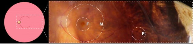 The schematic shows the three regions of the choroid, in relation to the entire eye (left) and as regions (fovea, macula and periphery). Images courtesy of Vinit Mahajan lab, University of Iowa.