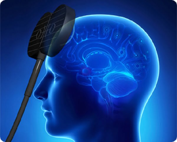 Could your brain be reprogrammed to work better - neuroinnovations