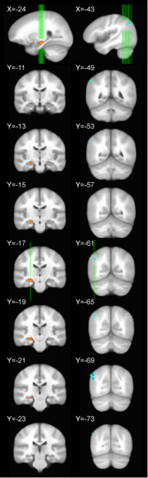 Hippocampal targets and stimulation locations.  Individualized hippocampus targets and parietal cortex stimulation locations are shown in stereotactic space superimposed on a template brain (ICBM 452).  Voxels in red to yellow indicate location of hippocampal targets, averaged over subjects, with yellow indicating greater across-subject spatial overlap (left column).  Voxels in cyan to blue indicate the location of parietal cortex stimulation locations averaged over subjects, with dark blue indicating greater across-subject spatial overlap (right column).  The location of the axial slices is indicated by green lines in the sagittal slice at the top of each column.  Voss et al 2014.