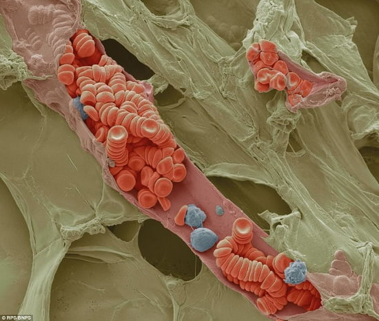 Coloured scanning electron micrograph showing red and white blood cells inside a small blood vessel by Steve Gschmeissner, Bedfordshire. The sample was prepared by freeze fracturing, rapidly freezing the sample with liquid nitrogen such that tissues are instantly preserved. If the sample is broken, the inner structures are revealed. In this frame, a tiny vein, or venule, has been opened to show the blood cells inside.