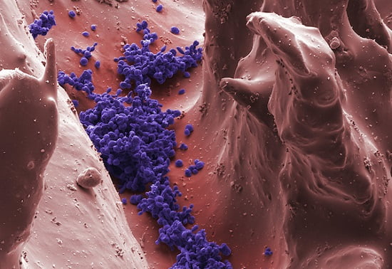 Yeast (Candida albicans) on the filiform papillae of the tongue, the pathogens that cause oral thrush. SEM X600.  Credit:  Dr. Stanley Flegler/Visuals Unlimited, Inc.