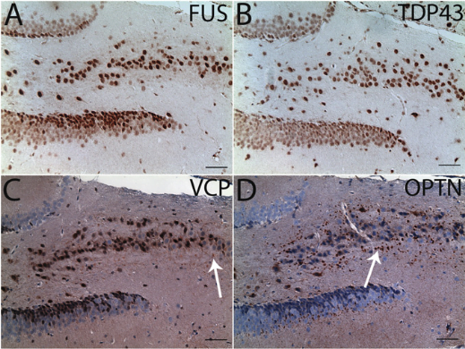 ALS- and frontotemporal dementia (FTD)-associated proteins in transgenic mice.  Immonohistochemtry (A–D) and confocal microscopy.  Relatively weak VCP- and strong OPTN-immunoreactive aggregates were present in the hippocampus (C and D, indicated by arrows). Hematoxylin was not used for FUS (A) and TDP43 (B) immunohistochemistry to avoid masking nuclear staining of these two proteins.  Dendritic spinopathy in transgenic mice expressing ALS/dementia-linked mutant UBQLN2.  Siddique et al 2014.