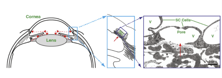 Aqueous humor flow pathway. (Left) Schematic of anterior segment of eye showing the direction of aqueous humor flow in red.  (Center)  Enlargement of the iris-cornea angle (boxed region in left panel) to show the conventional outflow pathway.  (Right) Transmission electron micrograph of endothelial cells forming the inner wall of SC; aqueous humor crosses the endothelium through pores to enter the lumen of SC. V, giant vacuoles.  Altered mechanobiology of Schlemm's canal endothelial cells in glaucoma.  Johnson et al 2014.
