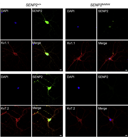 Hyper-SUMOylation of Kv1.1 and Kv7.2 in SENP2 fxN/fxN Neurons.  SENP2 colocalizes with Kv1.1 and Kv7.2 in hippocampal neurons. Neurons from the brains of SENP2+/+ and SENP2fxN/fxN mice were cultured for immunocytochemistry with SENP2 (green) and Kv1.1- (red) or Kv7.2 (red)-specific antibodies.  DAPI (blue) was used to show nuclei. Bars in all panels are 5 microns.  Yeh et al 2014.