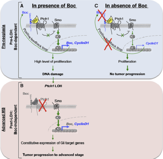 Boc Promotes MB Progression from a Preneoplastic to an Advanced Stage  (A) In presence of Boc. Boc upregulation increases Shh signaling pathway activity in early MB, and Boc expression is also positively regulated by the Shh signaling pathway. Thus Boc participates in a positive feedback loop increasing Shh signaling. This positive feedback loop promotes the expression of Gli target genes known to stimulate proliferation. In addition, Boc, through elevated Shh signaling, promotes high levels of DNA damage, an effect mediated by CyclinD1.  Elevated DNA damage increases the incidence of Ptch1 LOH.  (B) After Ptch1 LOH has occurred, the absence of Smo repression due to loss of Ptch1 induces constitutive and ligand-independent expression of Gli target genes, leading to tumor progression to an advanced stage. These advanced tumors are Boc-independent.  (C) In absence of Boc, the positive feedback loop is disrupted. This results in lower proliferation and DNA damage compared to when Boc is present. Consequently, the frequency of Ptch1 LOH is reduced. Mice escaping Ptch1 LOH will not develop advanced MB.  The Shh Receptor Boc Promotes Progression of Early Medulloblastoma to Advanced Tumors.  Charron et al 2014.