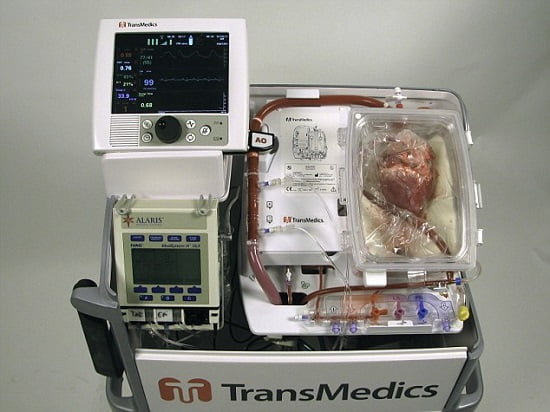 Doctors at St Vincent's Hospital in Sydney used a heart-resuscitation console and preservation solution developed in Australia to transplant dead hearts into patients.  Copyright © dmg media, 2014. All Rights Reserved.