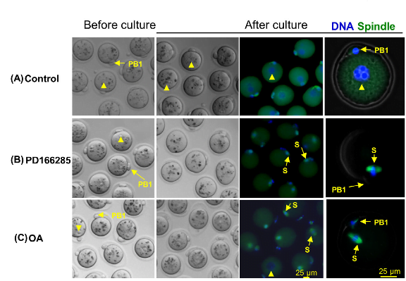 PP2A activities and Ensa protein levels during oocyte maturation.  A representative experiment for obtaining data. Before treatment with inhibitors, all of the oocytes contained a nucleus (arrowheads) and a PB1. Immunofluorescence of OoMastl-/-oocytes treated with inhibitors indicating formation of spindles (S) and chromosome condensation. All experiments were repeated at least three times, and representative results are shown.  Mastl is required for timely activation of APC/C in meiosis I and Cdk1 reactivation in meiosis II.  Kaldis et al 2014.