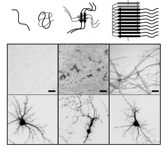 These are representative images of beta-amyloid aggregation and the dendritic trees of living and dead neurons.  Credit: Bernat Serra-Vidal, IRB Barcelona and Lluis Pujadas/Daniela Rossi, University of Barcelona.