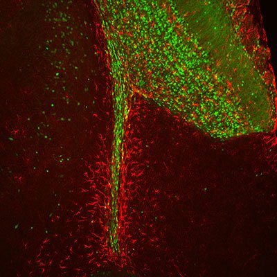 Making 'scents' of new cells in the brain's odor-processing area.  Adult-born cells travel through the thin rostral migratory stream before settling into the olfactory bulb, the large structure in the upper right of the image.  Courtesy of the Belluscio Lab, NINDS.