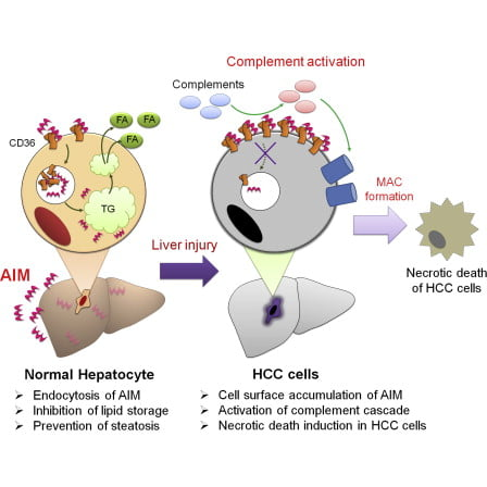 (Left) AIM is taken up into healthy liver cells, where it inhibits lipid storage and prevents steatosis, an illness caused by the buildup of excess lipid inside cells. (Right) In a liver with HCC, AIM accumulates on the cell surface, resulting in the activation of the complement cascade and inducing necrotic cell death. Dead HCC cells are then cleared by liver macrophages.  Credit: © 2014 Toru Miyazaki.