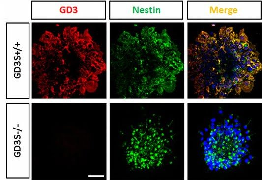 Accelerated loss of self-renewal ability in GD3-KO NSCs is accompanied by a decreased EGFR expression level.  Immunofluorescence of GD3 and nestin stain in neurospheres from GD3S+/+ and GD3S−/− mice.  Interaction of ganglioside GD3 with an EGF receptor sustains the self-renewal ability of mouse neural stem cells in vitro.  Wang et al 2013.