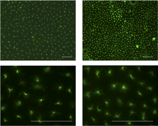 Distribution and morphology of skin DCs. Untreated epidermal sheets from WT and IL-37tg mice were stained with FITC-labeled anti-mouse MHC II.  (Scale bar, 100 μm).  Suppression of antigen-specific adaptive immunity by IL-37 via induction of tolerogenic dendritic cells Supporting Information.  Fujita et al 2014.