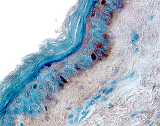 IL-13 Receptor alpha 1 in Human Skin.  Interleukin-13 Receptor alpha 1 (IL-13 R alpha 1) was detected in immersion fixed paraffin-embedded sections of human skin using Human IL-13 R alpha 1 Antigen Affinity-purified Polyclonal Antibody. Tissue was stained using the Anti-Goat HRP-DAB Cell & Tissue Staining Kit (brown) and counterstained with hematoxylin (blue).  ©2014 R&D Systems, Inc. All Rights Reserved.
