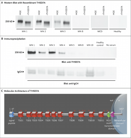 Identification of the Target Antigen.  Panel A shows reactivity of serum samples with human glomerular extracts (HGE) and recombinant thrombospondin type-1 domain-containing 7A (rTHSD7A). Only samples from patients with membranous nephropathy (MN) that previously recognized the 250-kD protein present in HGE also recognized rTHSD7A (MN 1, MN 2, and MN 3). Panel B shows results of immunoprecipitation experiments. All serum samples from patients with membranous nephropathy that previously recognized rTHSD7A precipitated the antigen from HGE. No immunoprecipitation occurred with serum from healthy controls or with no serum (i.e., with water substituted for serum in the experiment). IgG4 was efficiently immunoprecipitated in all conditions (lower panel). Panel C shows the molecular architecture of THSD7A, with a large extracellular region comprising 11 thrombospondin type-1 domains (TSDs), 14 glycosylation sites (N), and 1 predicted arginine–glycine–aspartic acid (RGD) motif. The scheme was built according to the UniProt accession number Q9UPZ6 for THSD7A and ScanProsite tool from ExPASy.  Thrombospondin Type-1 Domain-Containing 7A in Idiopathic Membranous Nephropathy.  Lambeau et al 2014.