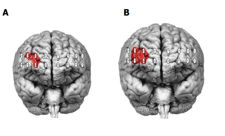 A)  Functional near-infrared spectroscopy region of interest; right dorsolateral prefrontal cortex (DLPFC).  Colored areas represent optodes differentiating the recent withdrawal from the extended care groups.   B)  Functional near-infrared spectroscopy region of interest; right dorsolateral prefrontal cortex (DLPFC).  Red area represent optodes differentiating the recent withdrawal from the extended care and healthy control groups.  Possible Evidence for Re-regulation of HPA Axis and Brain Reward Systems Over Time in Treatment in Prescription Opioid-Dependent Patients.  Bunce et al 2014.