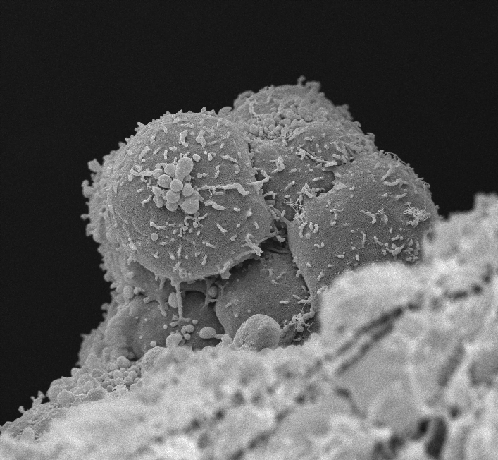 Scanning electron microscopy picture of an intra-aortic hematopoietic cluster (collaboration with Dr. M. Mommaas and J. Onderwater, LUMC).  Credit:  Hubrecht Institute 2014.