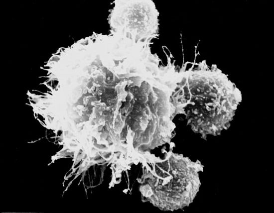 T cells surrounding a dendritic cell   © DKFZ / Markus Feuerer.