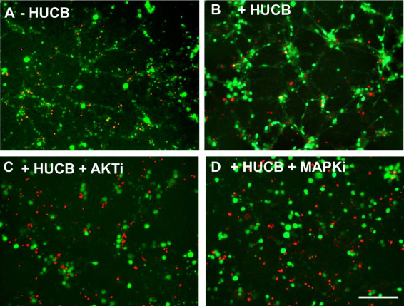 HUCB cell-mediated neuroprotection depends on activation of the Akt signaling pathway.  Significant neuronal loss was observed in neurons exposed to OGD (A). HUCB cell treatment rescued neuronal loss (B) while HUCB cells lose their neuroprotective effects after adding Akt inhibitor into the culture media (C). Addition of MAPK inhibitor failed to influence HUCB cell-mediated neuronal protection (D).  Human Umbilical Cord Blood Cells Induce Neuroprotective Change in Gene Expression Profile in Neurons after Ischemia through Activation of Akt Pathway.  Willing et al 2014.