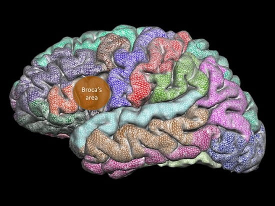 Broca's area, the region of the brain responsible for speech production, develops abnormally in people who stutter.  Credit:  Deryk Beal/University of Alberta.