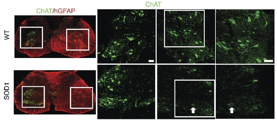 Integration of astrocytes from patients with ALS and its effect on mouse MNs.  Integration of astrocytes from patients with ALS and its effect on mouse MNs. Human-derived neural progenitors functionally replace astrocytes in adult mice.  Zhang et al 2015.