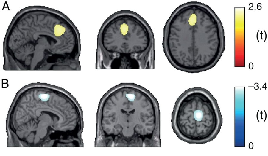Brain sources encoding tonic pain. Locations of (A) the strongest relationship between subjective pain intensity and brain activity in the gamma band (30–100 Hz) and (B) the strongest relationship between objective stimulus intensity and brain activity in the beta band (14–29 Hz) as assessed by LMM in source space. Positive and negative relationships are depicted by warm and cold colors, respectively. MNI coordinates of strongest relationships (peak locations) were −4, 34, 36 in (A) and 8, −16, 68 in (B).  Prefrontal Gamma Oscillations Encode Tonic Pain in Humans.  Ploner et al 2015.