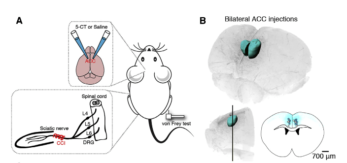 Injections of 5-CT into the ACC Reduces Mechanical Sensitivity in CCI Animals.  (A) Schematic illustration of the experimental design to test mechanical hypersensitivity after CCI surgery and bilateral injection of 5-CT or saline into the ACC.  (B) 3D reconstruction of a brain imaged with 3D ultramicroscopy showing the volume and site of the injection in ACC after ex vivo fixation and clearing of the entire brain. The injections were performed 0.70 mm rostral to Bregma, 0.35 mm lateral to midline, and 1.75 mm below the skull surface in each hemisphere. The bottom right image shows a single coronal section, and dots indicate the center of the injection volume for 5-CT (blue) and saline (white) treatments.  Dysfunction of Cortical Dendritic Integration in Neuropathic Pain Reversed by Serotoninergic Neuromodulation.  Nevian et al 2015.