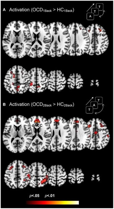 Dysfunctional activation profiles in OCD (relative to controls) are depicted for both (A) the 1Back level of memory and (B) the 2Back level of memory load. Increased activation in OCD (p < 0.05, cluster level) is depicted on identical ascending mosaics of axial views. These activation profiles indicate increased activation in dorsolateral prefrontal cortex (dPFC), the dorsal anterior cingulate (dACC), and the parietal cortex in OCD. Notably the degree of dysfunctional activation in OCD scales as a function of memory load. We speculate that the parametric demands as expressed in dysfunctional activation profiles load disproportionately in OCD participants. As will be seen, brain network profiles in OCD do not strictly follow activation patterns, evidence that signatures of network interactions may complement psychopathology revealed in activation models.  Dysfunctional activation and brain network profiles in youth with obsessive-compulsive disorder: a focus on the dorsal anterior cingulate during working memory.  Rosenberg et al 2015.