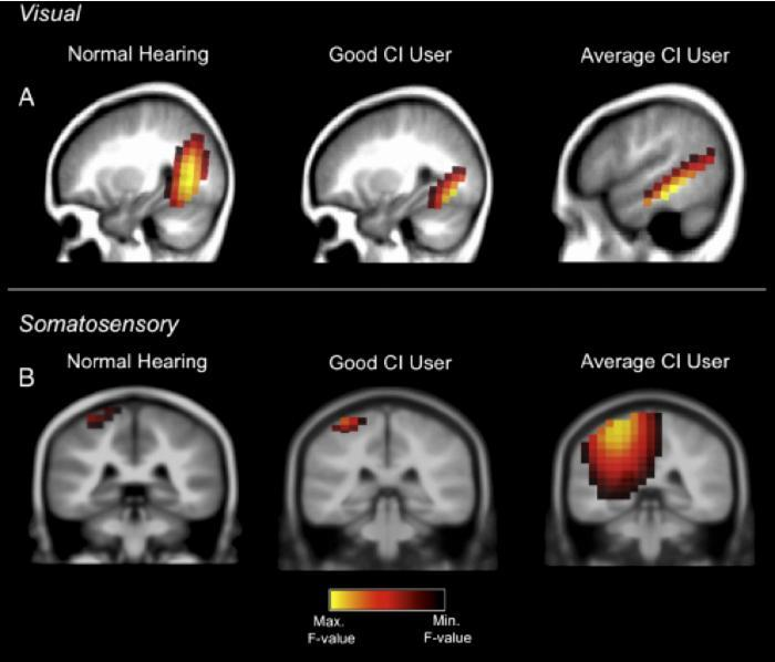 A good performer with the cochlear implant shows normal brain activations in response to visual and somatosensory (touch) stimulation. A cochlear implant user who performs averagely, however, shows additional recruitment of hearing brain centers for processing vision and tactile stimulation.  Credit:  Anu Sharma.