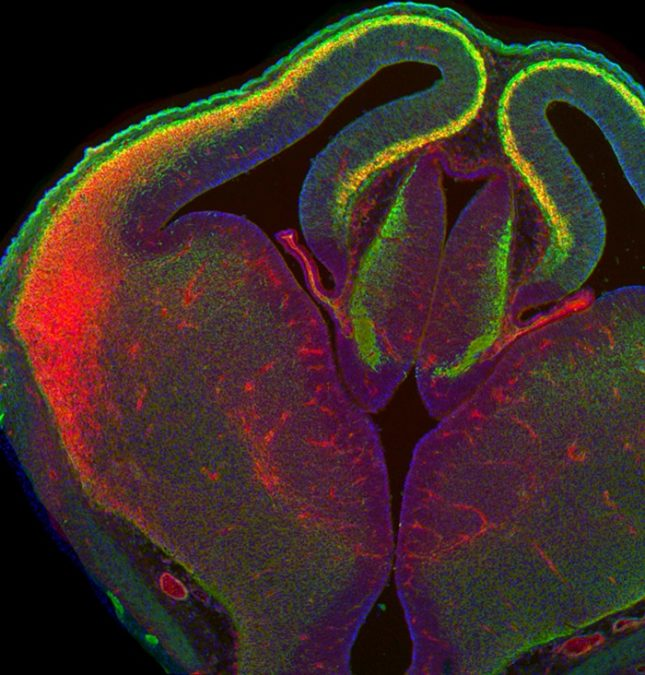 An embryonic mouse forebrain shows the genetically modified neurons in the neocortex (orange/yellow). Cortical stem cells and neurons in other brain regions remain unaltered.  Credit:  Courtesy of Andreas Zembrzycki/Salk Institute.