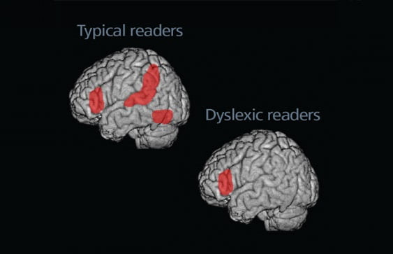 Brain-imaging studies show that, while reading, most people activate areas in the left temporal cortex and other regions of the left hemisphere. Dyslexic readers, on the other hand, underactivate these regions. (Both images show the left side of the brain.)  Twomey/Eden, Georgetown University.