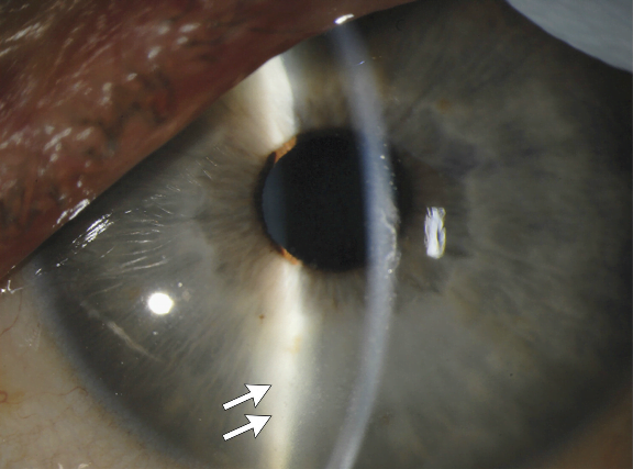Slit-Lamp Photograph of the Left Eye 14 Weeks after the Onset of Ebola Virus Disease.  Mild corneal edema, rare keratic precipitates (arrows), and inflammatory cells and protein in the anterior chamber are consistent with acute anterior uveitis.  Persistence of Ebola Virus in Ocular Fluid during Convalescence.  Yeh et al 2015.