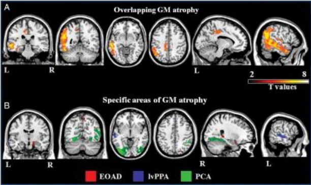 MR images of A, common and B, syndrome-specific patterns of cortical atrophy across the Alzheimer's disease variants.  Credit:  Radiological Society of North America.