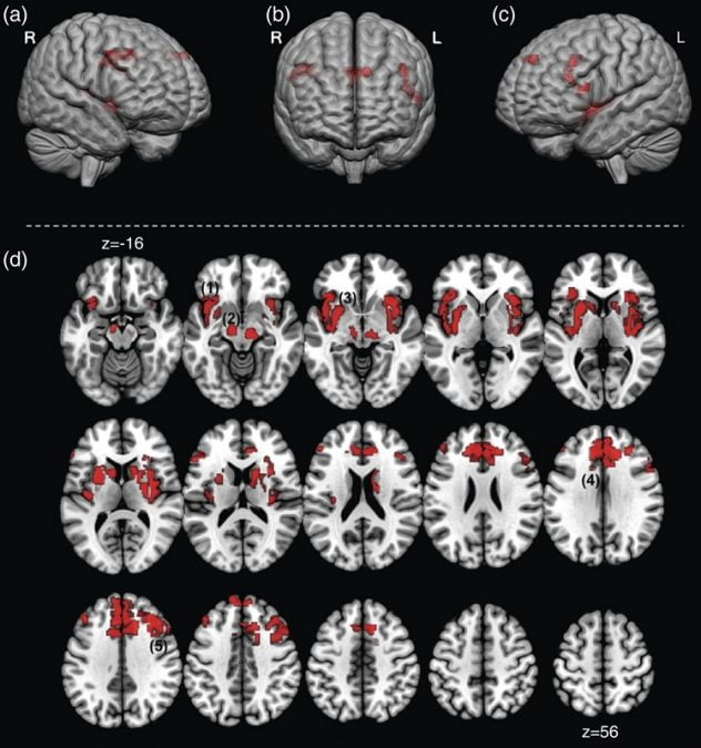 Forebrain activation in the Flash window is depicted in complimentary renditions. (a–c) depicts significant clusters projected onto the cortical surface (depicted from an anterior view). Dorsal prefrontal clusters are visible (a,c) as are clusters in the dorsal anterior cingulate (b). In addition, (d) depicts a mosaic of axial views (z = −16 and superior). Significant clusters overlaid showing comprehensive activations during the Flash interval. Depicted clusters are (1) the bilateral insula, (2) the brain stem, (3) the basal ganglia, (4) the anterior cingulate cortex, and (5) the dorsal prefrontal cortex. These results in the Flash window depict a network of forebrain regions joining the brainstem (that remains active) during the experience of the HF. These regions have previously been shown to be active in empirical fMRI investigations of noxious heat stimulation and/or are thought to be associated with neurochemical correlates (e.g. dopaminergic) of thermal regulation. This overlap in previous studies of heat pain present an interesting extension of fMRI studies that has been previously undocumented.  Temporal Sequencing of Brain Activations During Naturally Occurring Thermoregulatory Events.  Diwadkar et al 2013.