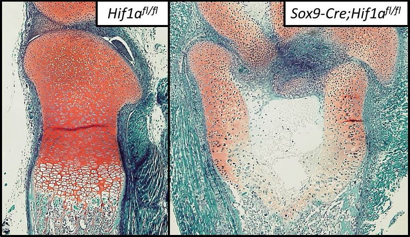 HIF-1α regulates the configuration and maintenance of articular cartilage through induction of anabolic factors and suppression of catabolic factors. Elucidation of the molecular network related to HIF-1α may lead to cartilage regeneration and OA treatment.  HIF-1α REGULATES CONFIGURATION AND MAINTENANCE OF ARTICULAR CARTILAGE THROUGH INDUCTION OF ANABOLIC FACTORS AND SUPPRESSION OF CATABOLIC FACTORS.  Okada et al 2014