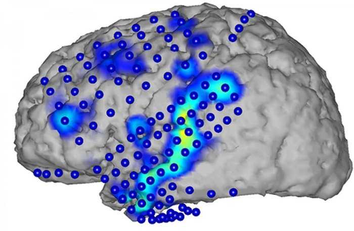Speech Recognition from Brain Activity.  Brain activity is recorded by electrocorticography (blue circles). From the activity patterns (blue/yellow), spoken words can be recognized.  Credit:  Figure: CSL/KIT.