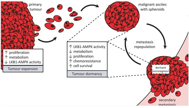 """Proposed divergent roles for LKB1-AMPK signalling in metastatic ovarian cancer. Ovarian cancer metastasis occurs via direct dissemination of primary tumour cells into the peritoneal cavity. Single cells in suspension will readily undergo detachment-induced apoptosis, or anoikis, but the formation into multicellular aggregates called spheroids protects them from cell death. Spheroids possess an enhanced ability to reattach onto the serosal surfaces of peritoneal organs upon which the ovarian tumour cells make a """"dormant-to-proliferative switch"""" and grow to establish secondary metastases. Rapidly-expanding tumour growth (whether in the primary tumour or metastases) would require reduced LKB1-AMPK signalling to allow for increased cell proliferation and anabolic metabolism. Spheroids, on the other hand, adopt a number of pathobiological changes which we propose contribute to their dormant phenotype and facilitate cell survival during metastatic transit in suspension. Our new results support the role for active LKB1-AMPK signalling contributing to ovarian cancer cell dormancy in spheroids by reducing energy metabolism and cell proliferation, yet promote cell survival and carboplatin-resistance in EOC spheroids.  Intact LKB1 activity is required for survival of dormant ovarian cancer spheroids.  Shepherd et al 2015."""
