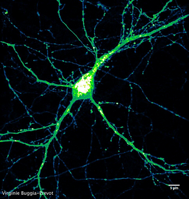 Live cell imaging.  Expression pattern (intensity color coded) of BACE1-yellow fluorescent protein in mature hippocampal neuron. BACE1 is involved in Alzheimer's disease. Its movement can be tracked from the bulbous cell's body, through the thicker dendrites and even the finest axons.  Courtesy of Virginie Buggia-Prevot, Gopal Thinakaran lab.