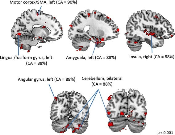 """Sex differences in brain morphometry in childhood autism. Girls and boys with ASD showed significant differences in brain structure. Notably, brain areas which showed sex differences in ASD fell into two general functional systems: the motor system and systems that form part of the """"social brain."""" These brain areas include the left motor cortex, left SMA, left lingual/fusiform gyrus, left angular gyrus, right insula, bilateral cerebellum, and bilateral amygdala. They showed high classification accuracies (CA>85 %) for distinguishing girls from boys with ASD. CA value given for a set of contiguous voxels corresponds to the highest classification accuracy among those voxels.  Sex differences in structural organization of motor systems and their dissociable links with repetitive/restricted behaviors in children with autism.  Supekar and Menon Molecular Autism 2015."""