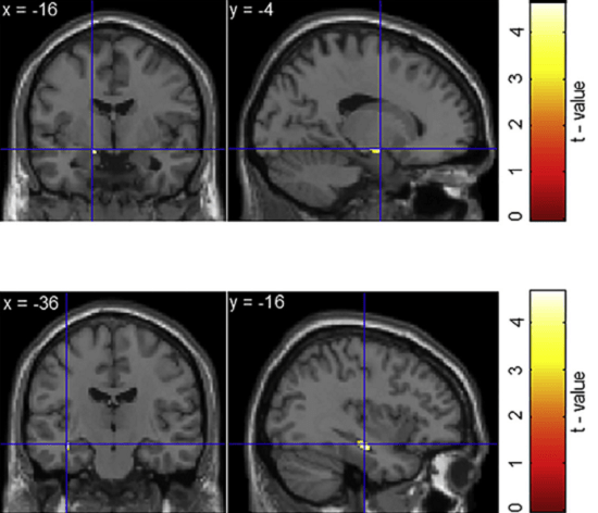 Response Conflict Is Associated with BOLD Signal Enhancement in the Hippocampus. ) Results within a search mask consisting of hippocampus and parahippocampal gyrus. Left: brain activation within the left hippocampus for the contrast correct inconsistent > correct consistent trials. Human Hippocampal Dynamics during Response Conflict. Axmacher et al 2015.