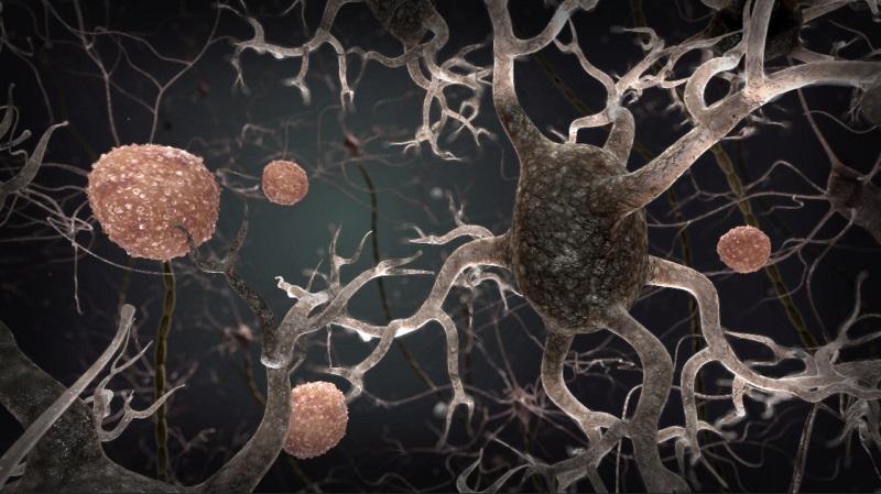 Resveratrol impacts Alzheimer's disease biomarker - neuroinnovations