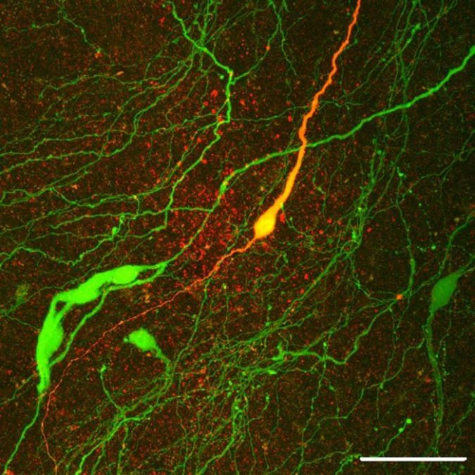 Image: GnRH neurons in green and yellow (Allan Herbison).