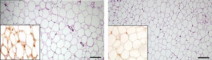 Fat tissue cells are enlarged and more loosely packed in mice lacking perforin-rich dendritic cells (left) compared with the fat tissue of regular mice (right). Inset: crown-like structures within the fat tissue (left, dark brown) are associated with increased inflammation.  Perforin-Positive Dendritic Cells Exhibit an Immuno-regulatory Role in Metabolic Syndrome and Autoimmunity.  Reisner et al 2015.