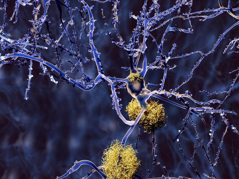 Swedish diagnostic method for Alzheimer's becomes international standard - neuroinnovations