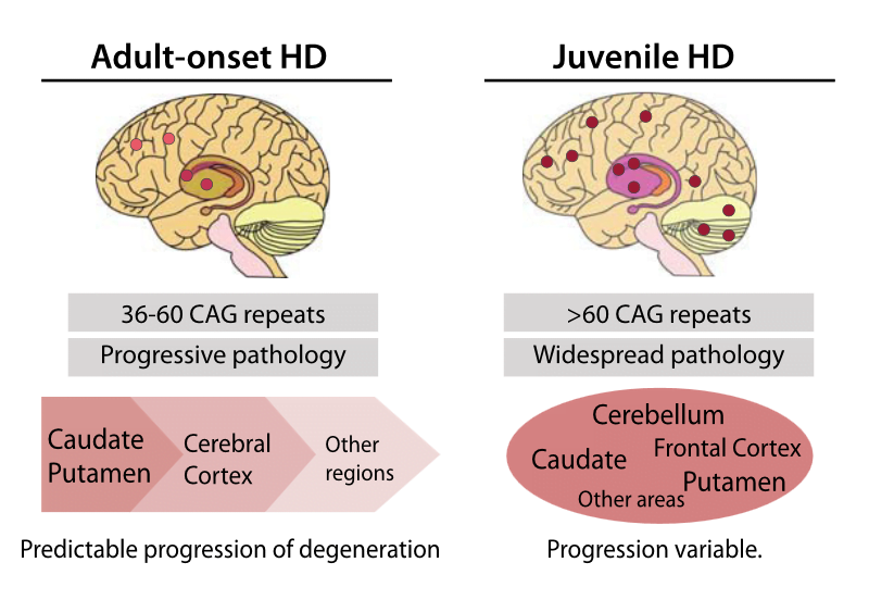 Increased RAN Protein Staining in Juvenile HD.  Schematic diagram summarizing features of adult-onset and juvenile HD pathology.  RAN Translation in Huntington Disease.  Ranum et al 2015.