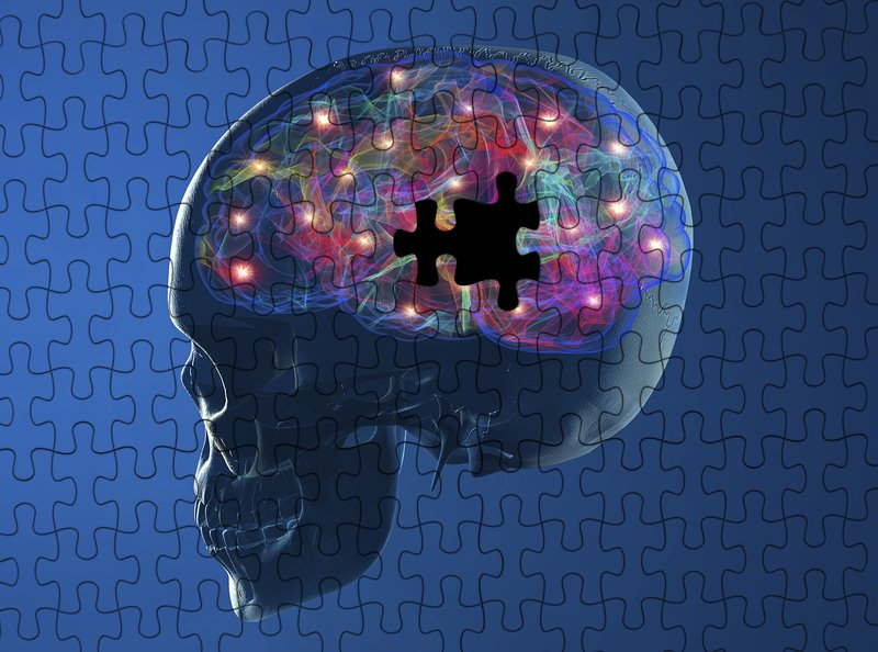 Women with Alzheimer's-related gene lose weight more sharply after age 70 - neuroinnovations