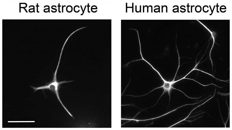 This photo shows the morphology of a rat astrocyte and a human astrocyte in a dish.  Credit: Ye Zhang and Steven A. Sloan.