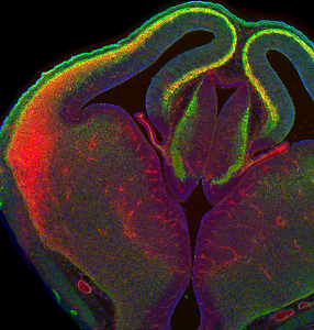 ft brain-cells-capable-of-early-career-switch-neuroinnovations